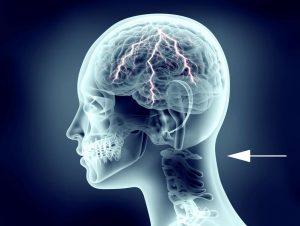 Kopfschmerzen im Nackenbereich