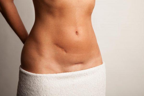 Narbenschmerzen nach Kaiserschnitt